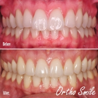 braces, aligners, invisalign